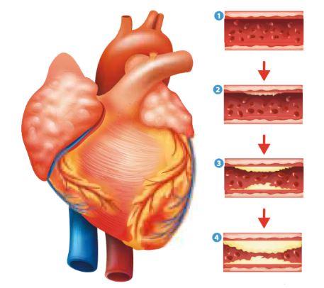 coeur et artères
