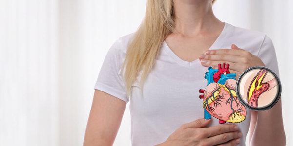 Baisser son taux de cholesterol