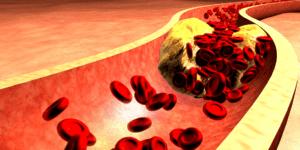 Article sur le choléstérol bouche artère - Laboratoire Naturoscience