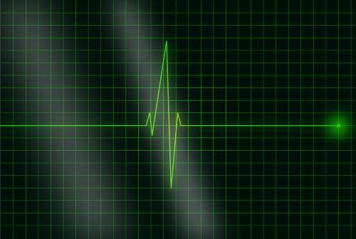 electrocardiogram tensio n - Laboratoire Naturoscience