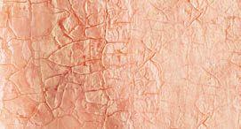 peau avant le traitement - Laboratoire Naturoscience