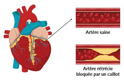 schema coeur crise cardiaque - Naturoscience